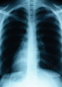 Lung X-Ray2