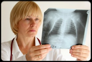 doctor & lung xray